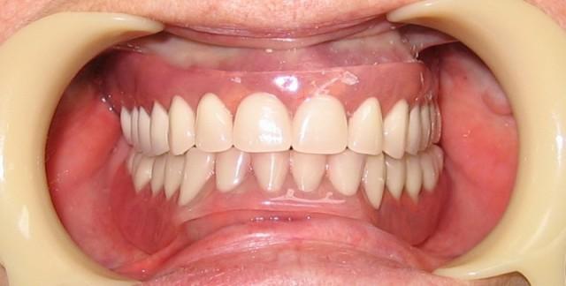 Сколько держится временная коронка на зубе